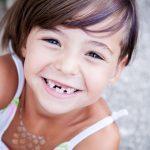 defectos del esmalte en odontopediatria