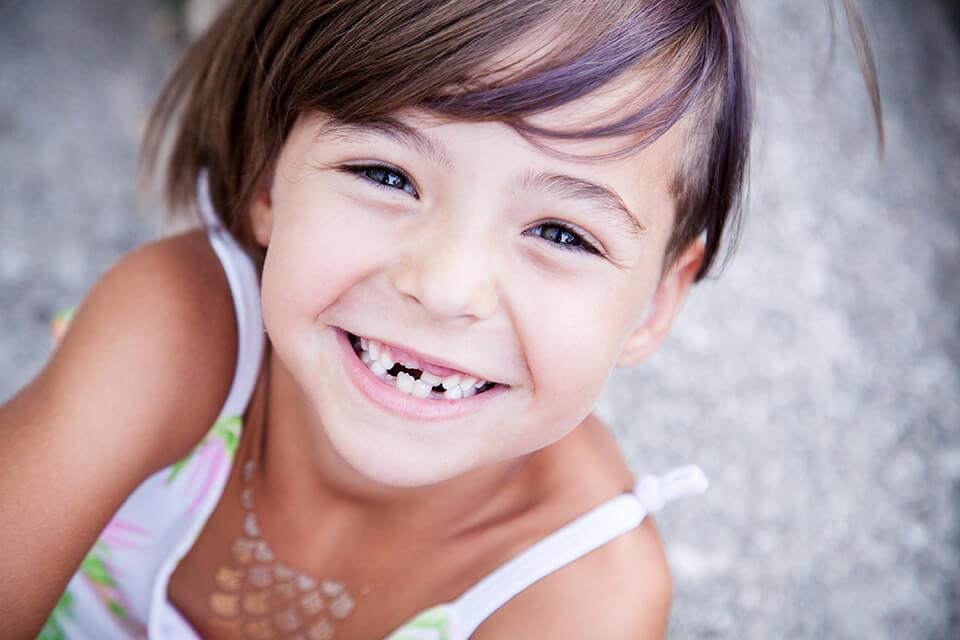 Defectos del esmalte una realidad en odontopediatria
